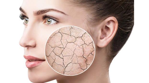 pelle secca consulenza cosmetologica